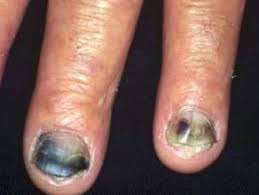 fungal nail infections and listerine